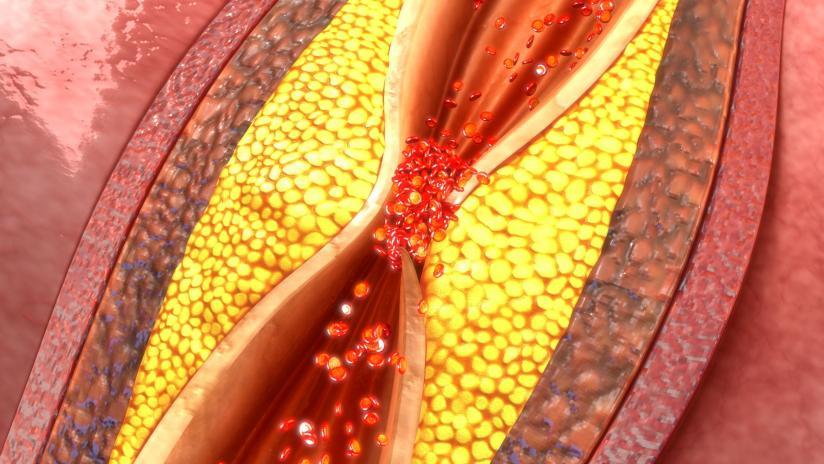 Consolidazione flebektomiya su una vena